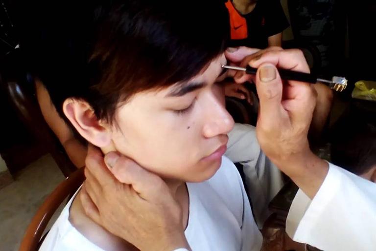 Phương pháp chữa viêm họng bằng diện chẩn
