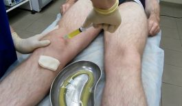Chọc hút dịch khớp gối giúp chẩn đoán và chữa trị bệnh liên quan đến tràn dịch khớp gối
