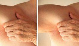 Nổi mẩn ngứa 2 bên nách có thể liên quan đến một số bệnh về da