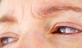 Mẩn ngứa quanh mắt là một trong những biểu hiện của viêm da mí mắt