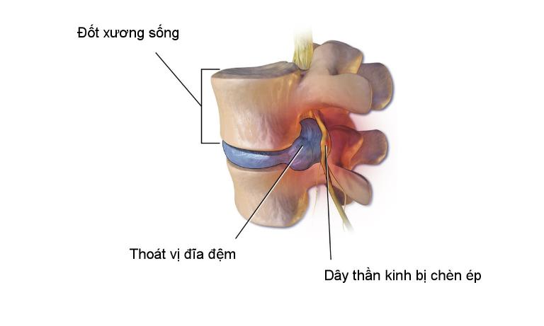 Khi những bao xơ bị tổn thương, dịch nhầy sẽ thoát ra ngoài chèn ép các dây thần kinh gây đau nhức.