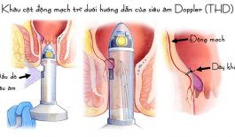 Tìm hiểu phương pháp phẫu thuật chữa trĩ bằng siêu âm Doppler