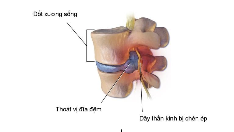 Thoát vị đĩa đệm là tình trạng chất dịch nhày trong bao xơ bị thoát ra ngoài, chèn ép các dây thần kinh.