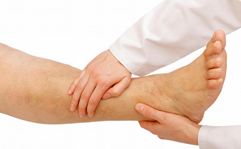 điều trị tràn dịch khớp cổ chân