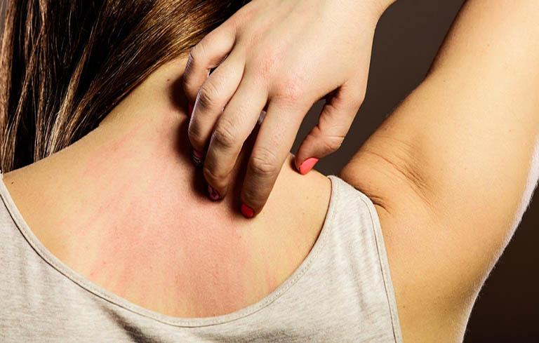 Gãi chỉ có tác dụng thỏa mãn cảm thời giảm các cơn ngứa ngáy