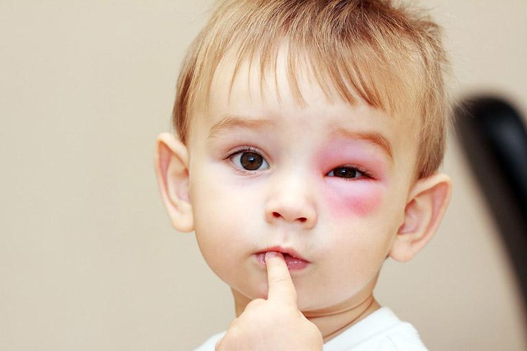 Triệu chứng nổi mề đay quanh mắt ở trẻ em