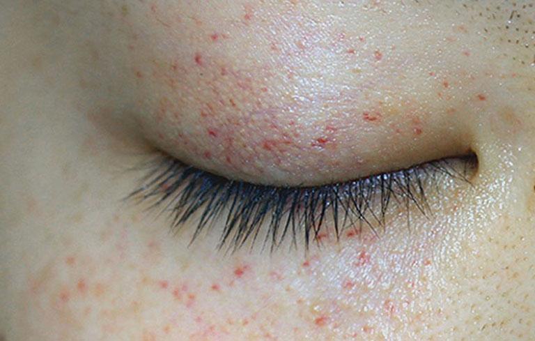 Bị nổi mề đay quanh mắt phải làm sao? Bệnh có nguy hiểm không? Cách phòng ngừa