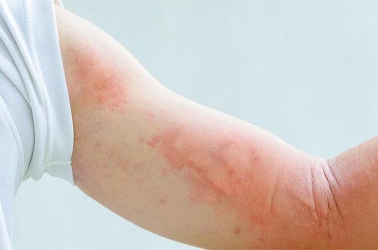 Thông tin về bệnh mạn tính vô căn và cách chữa trị