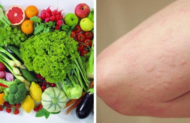 Kết hợp chế độ ăn uống khoa học khi điều trị mề đay