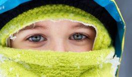 Bệnh nổi mề đay khi trời lạnh