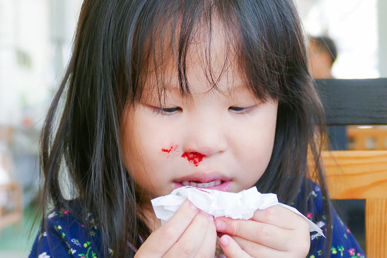 Trẻ bị chảy máu cam thường xuyên là dấu hiệu của bệnh gì?