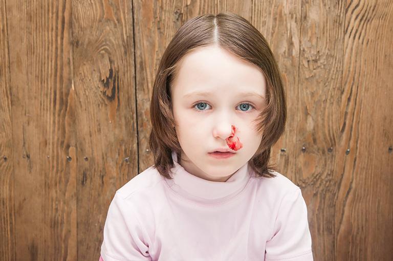Vì sao trẻ hay bị chảy máu cam về đêm? Cách xử lý