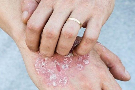 Bệnh vảy nến và viêm da