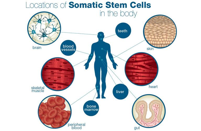 Tổng quan về cách chữa bệnh tiểu đường bằng tế bào gốc