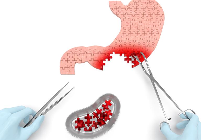 Địa chỉ điều trị ung thư dạ dày và chi phí tham khảo
