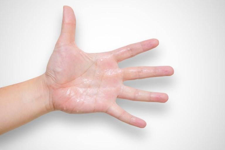 Bệnh phong thấp ra mồ hôi tay chân: Nhận biết và điều trị