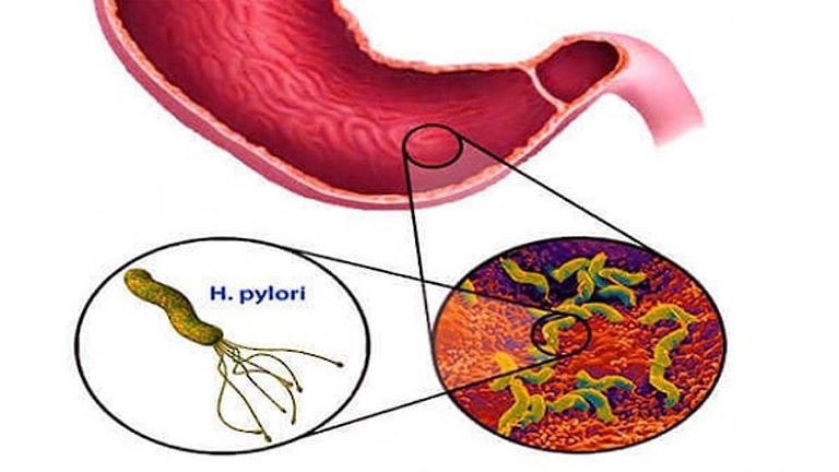 Vi khuẩn Hp sống được bao lâu còn tùy thuộc vào môi trường sống của chúng