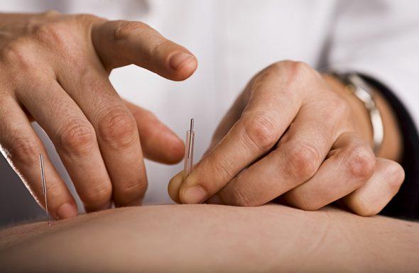 Các thông tin cần biết về phương pháp châm cứu chữa đau dạ dày