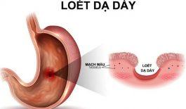 Tìm hiểu về các loại thuốc chữa viêm loét dạ dày thường được sử dụng