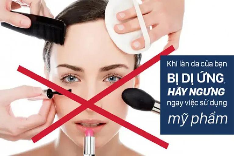 cách chữa dị ứng mỹ phẩm trên mặt