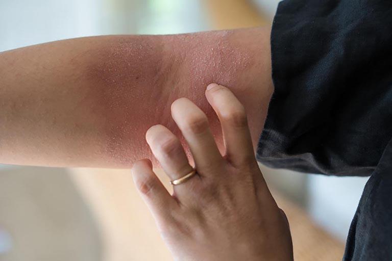 Tìm hiểu về các loại dị ứng da và cách điều trị