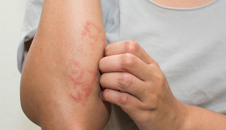 Da nổi mẩn đỏ, da nổi mề đay, xuất hiện mụn nhọt, mệt mỏi, khó thở,... là những biểu hiện của chứng dị ứng nước.