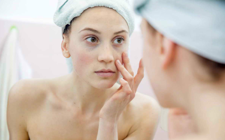 Dị ứng trên da mặt thường có các biểu hiện như: đỏ rát, mề đay, mẩn đỏ,...