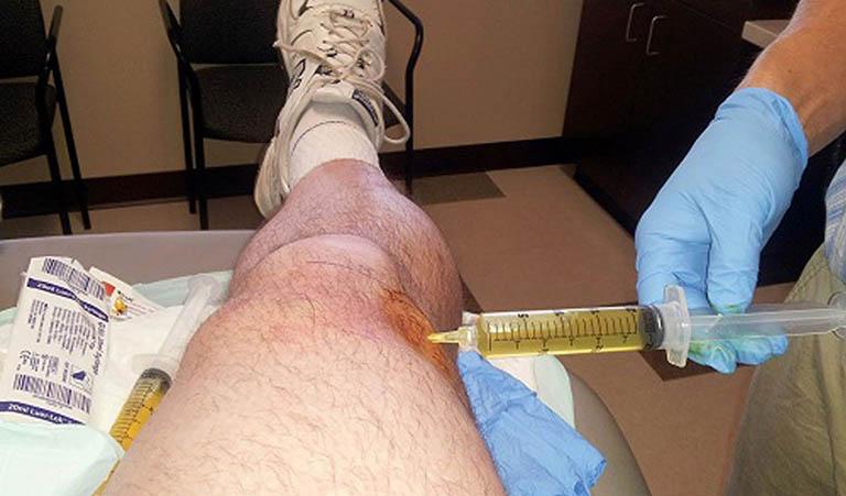 Điều trị bệnh bằng phương pháp dẫn lưu dịch khớp