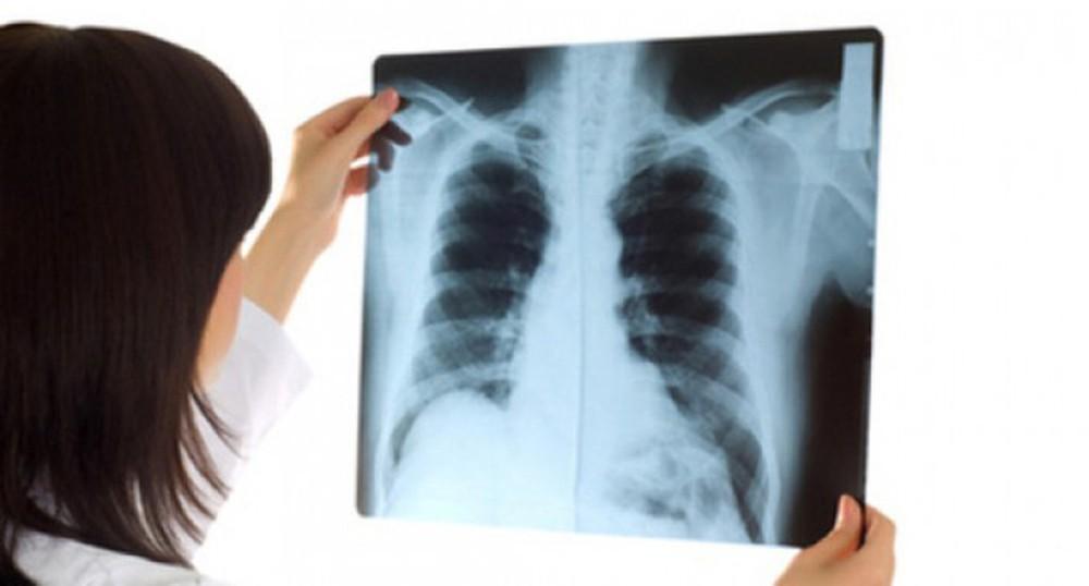 chụp x-quang chẩn đoán trẻ bị viêm tiểu phế quản