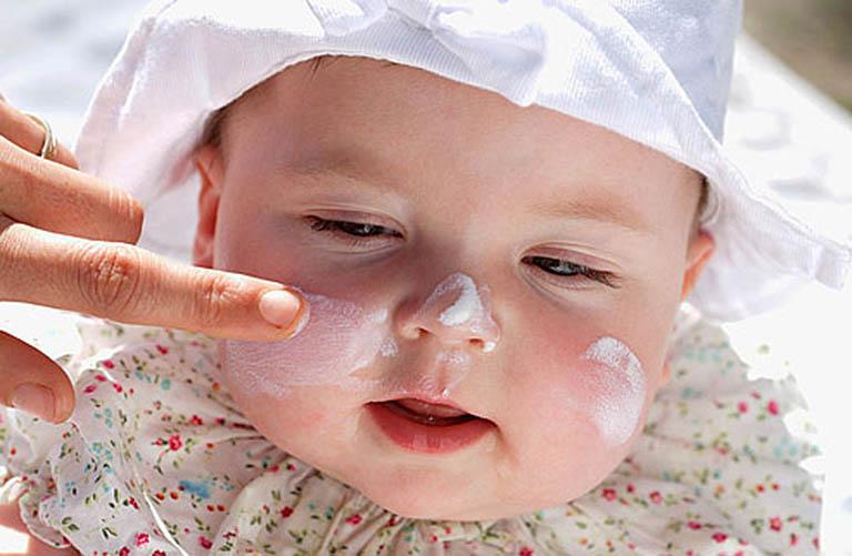 Nên dùng kem dưỡng ẩm khi trẻ bị viêm da cơ địa