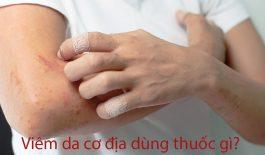 thuốc điều trị viêm da cơ địa