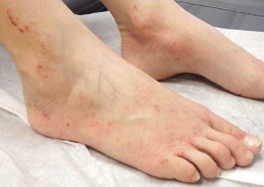 viêm da cơ địa ở chân