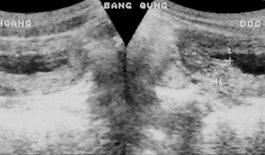 Hình ảnh siêu âm viêm bàng quang