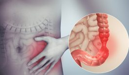 Hình ảnh hội chứng ruột kích thích