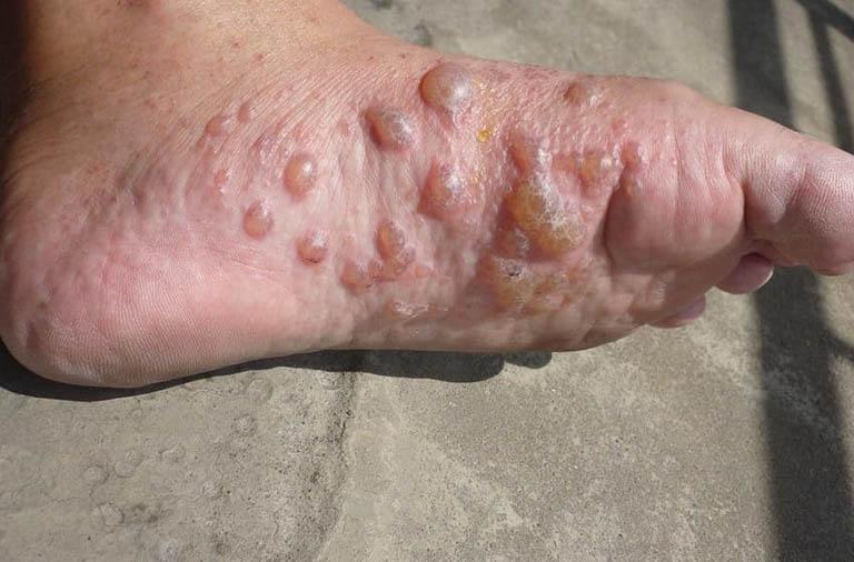 Dấu hiệu nhận biết bệnh tổ đỉa ở bàn chân