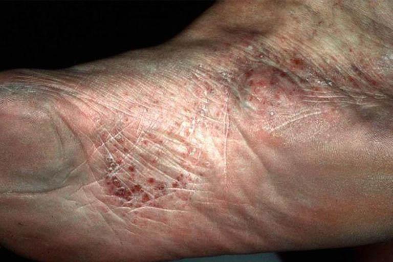 Bệnh tổ đỉa ở bàn chân: Dấu hiệu và cách điều trị