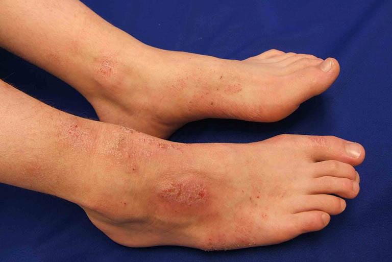 Bệnh viêm da cơ địa không lây nhiễm