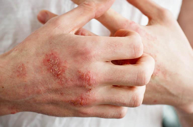 Biện pháp phòng ngừa bệnh viêm da cơ địa