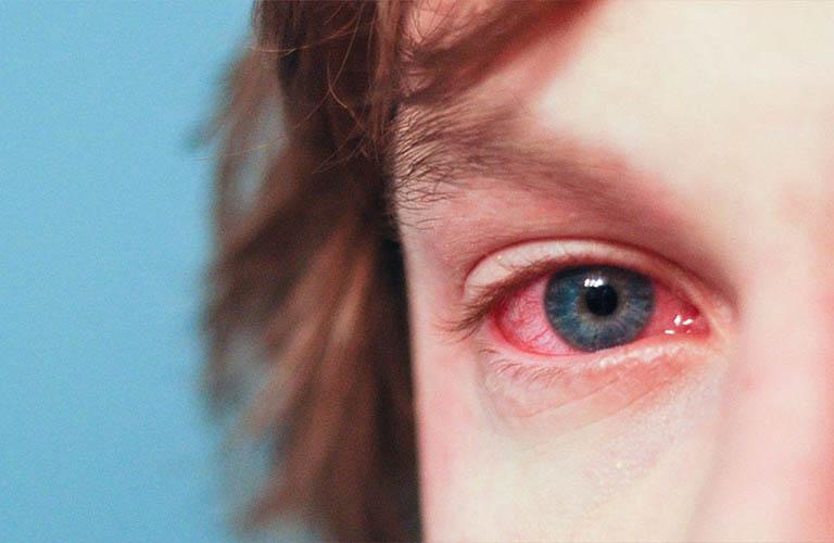 Giời leo ở mắt gây viêm loét giác mạc