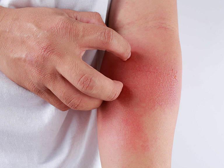 Dị ứng thời tiết thường khiến da phát ban, ngứa, đỏ