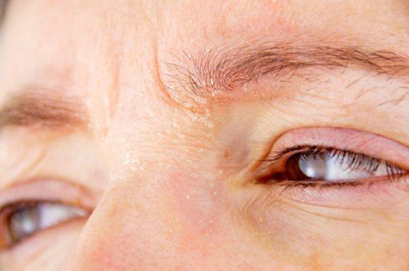 chăm sóc và phòng ngừa viêm da cơ địa tái phát