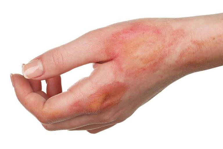 Hội chứng ngoại tử thượng bì nhiễm độc (TEN)