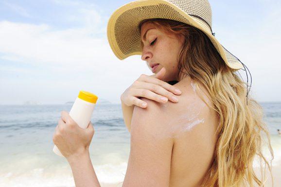 dị ứng kem chống nắng