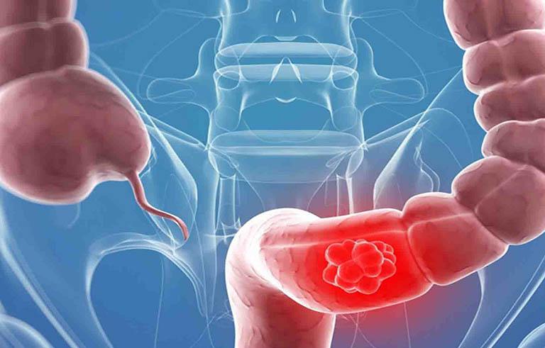 Nội soi đại tràng khi có tiền sử mắc bệnh ung thư đại tràng hoặc polyp trước đây
