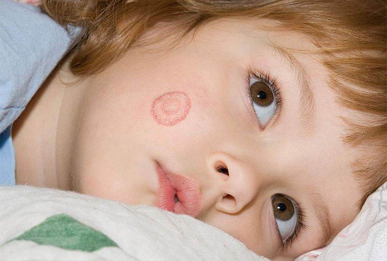 Lác đồng tiền khiến vùng da bệnh hình thành nhiều đốm tròn