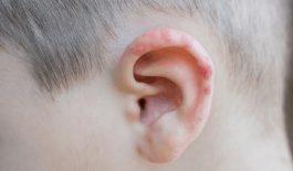 zona thần kinh ở tai