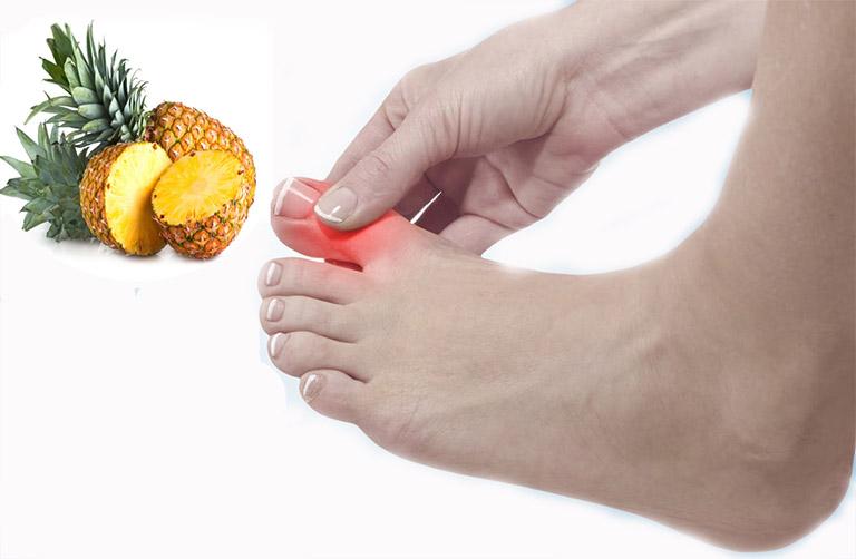Công dụng của quả dứa đối với bệnh gout