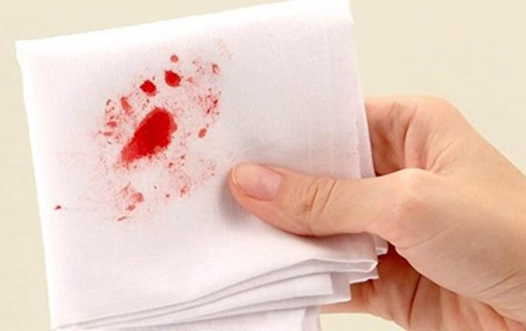 Bệnh trĩ chảy máu - Cách xử lý và điều trị