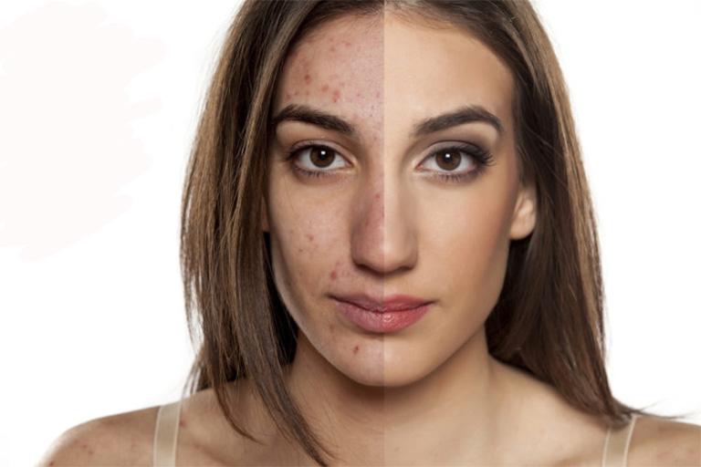 trị viêm nang lông bằng tinh dầu ozone có tốt không?