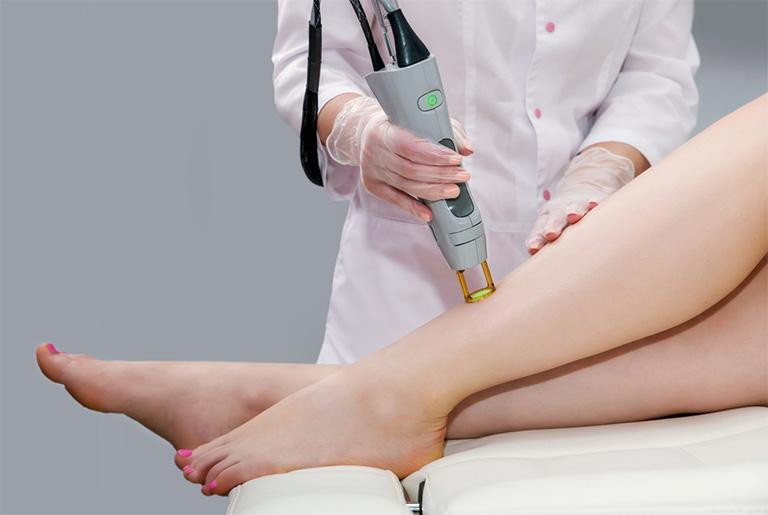 điều trị viêm nang lông bằng laser